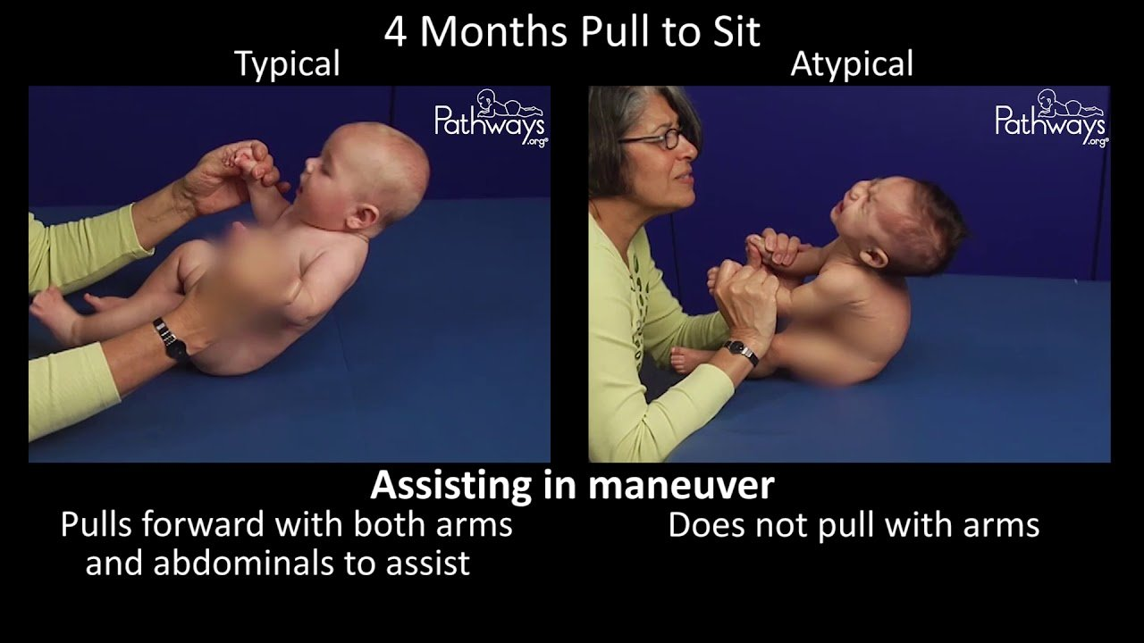 4 Month Old Typical and Atypical Motor Development - Side by Side